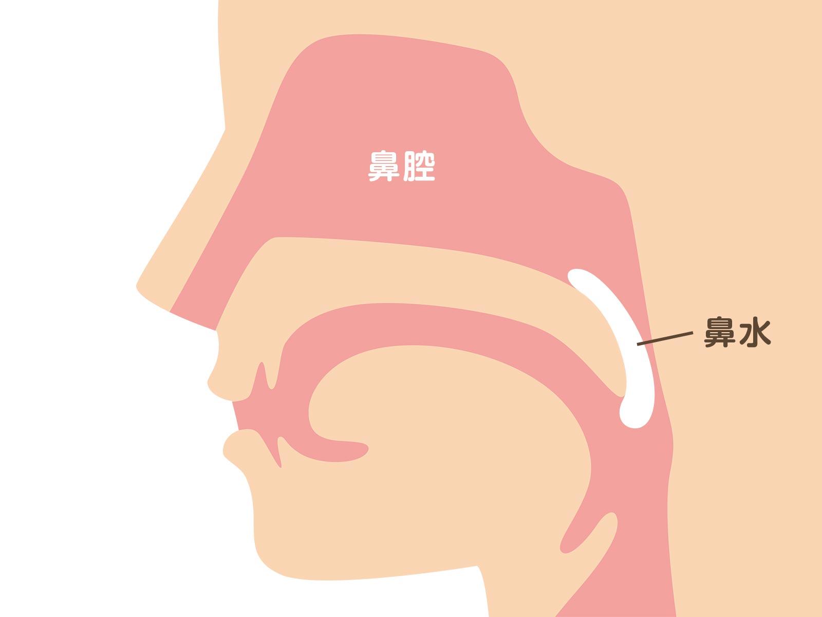 後鼻漏の特徴とは?